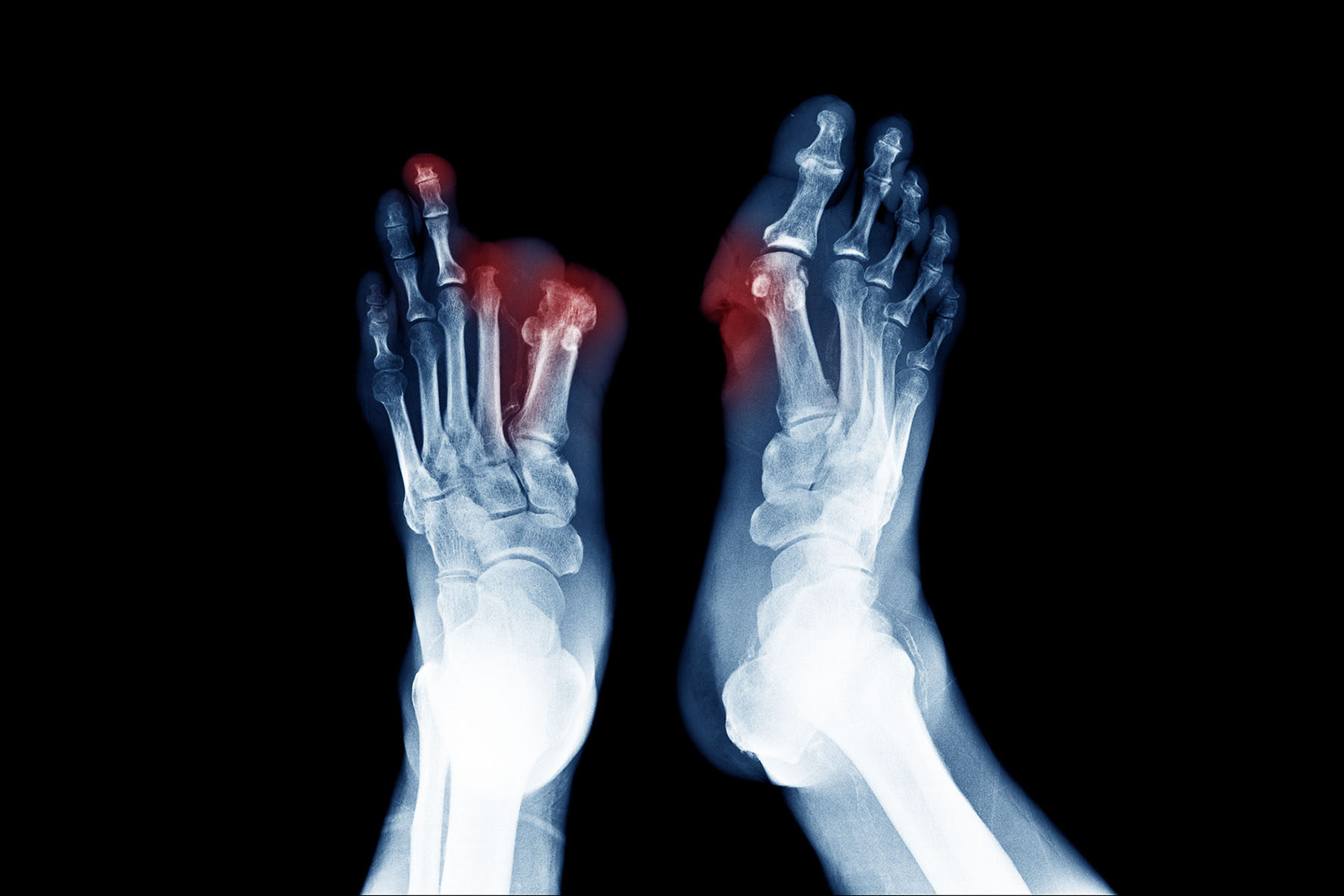 Foot pain and diabetic neuropathy